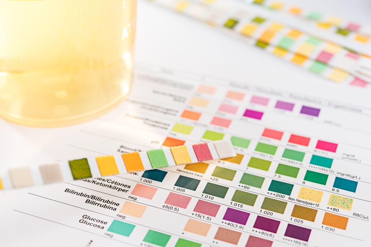 pH Wert Messung (Anleitung) - Gesundheitsanwendungen - Agenki